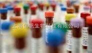利福平溶液(Rifampicin,50mg/ml)