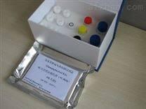 α-淀粉酶测试盒50管/24样品牌