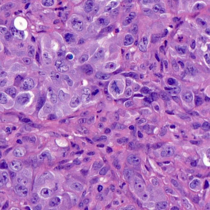 HE染色服务-免疫组化及互作实验服务